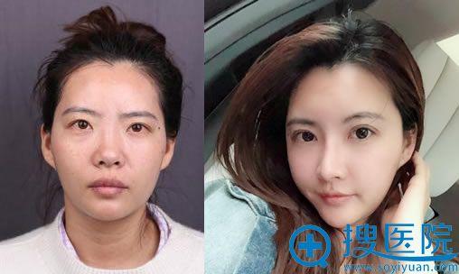 上海华美王荣锡自体脂肪全脸填充案例