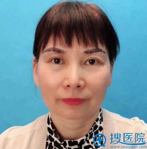 北京华韩柳民熙切眉案例2天效果
