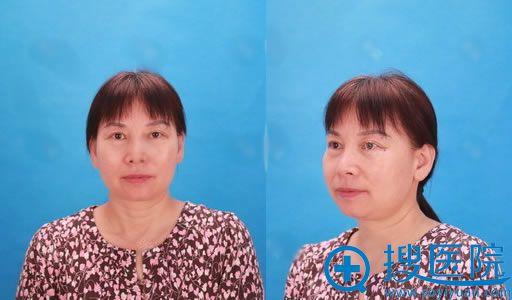 北京华韩医院切眉24天恢复照