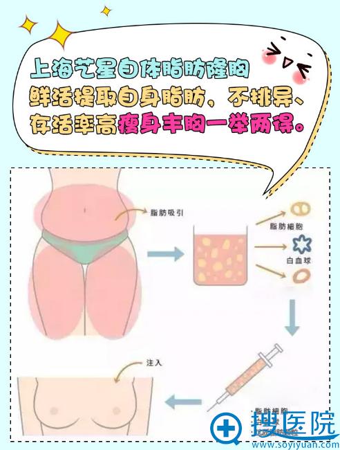 上海艺星自体脂肪隆胸手术过程图