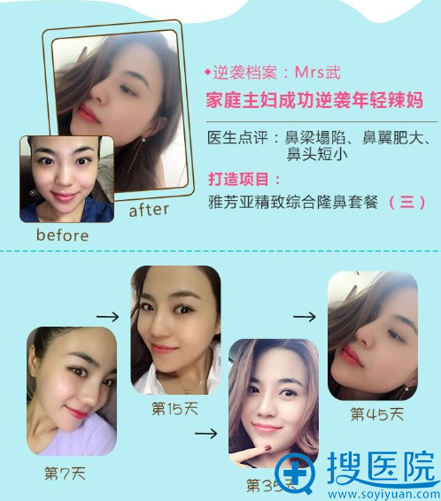 石家庄雅芳亚丁庆丰做的鼻综合隆鼻案例