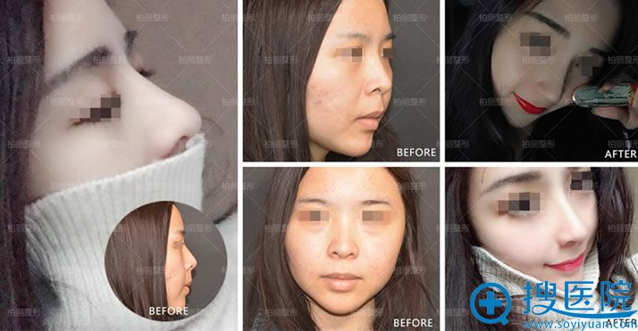 北京柏丽李劲良隆鼻手术案例