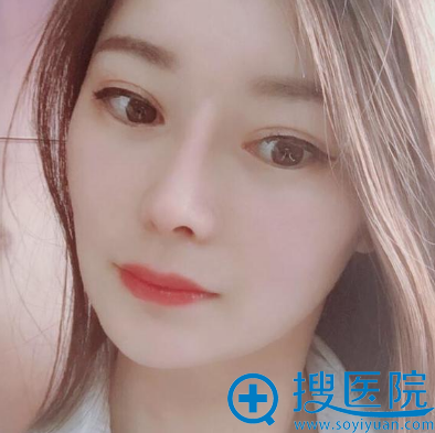 苏州紫馨赵延峰做的全肋软骨鼻综合隆鼻案例