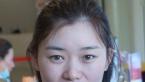 对比苏州紫馨和美莱的案例价格后找孙军/赵延峰做了双眼皮隆鼻