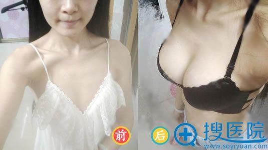 北京中日友好医院才杰假体隆胸案例