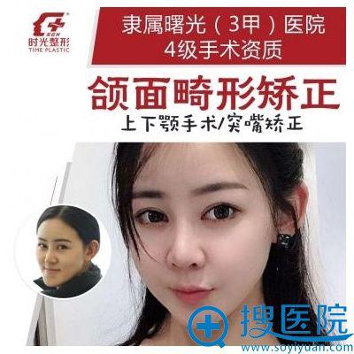 上海时光何晋龙做的上下颚和突嘴矫正案例