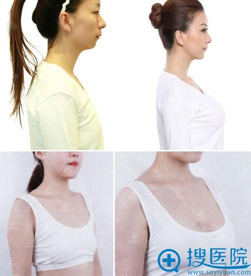黑龙江瑞丽杨永胜假体隆胸案例