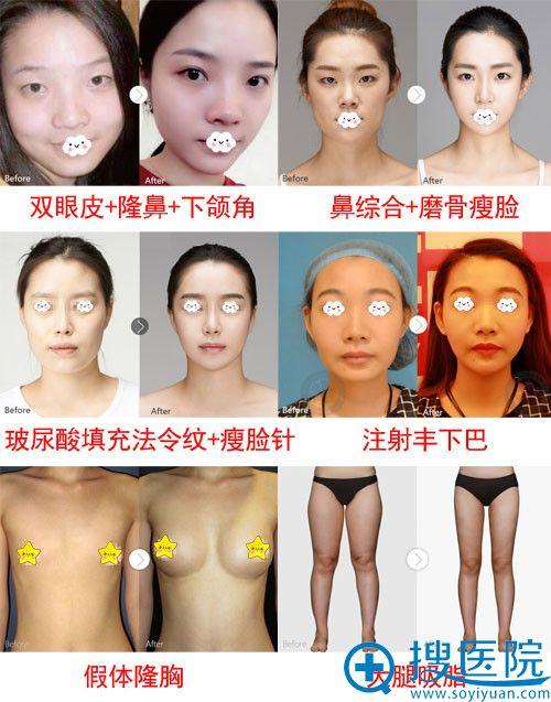武汉华美双眼皮、隆鼻、隆胸整形真人案例效果图