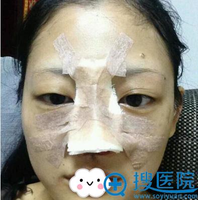 进口韩士生科隆鼻耳软骨垫鼻尖术后照片