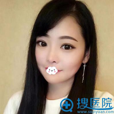 邹俊峰自体软骨鼻综合术后效果