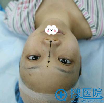 术前面诊确定手术方案