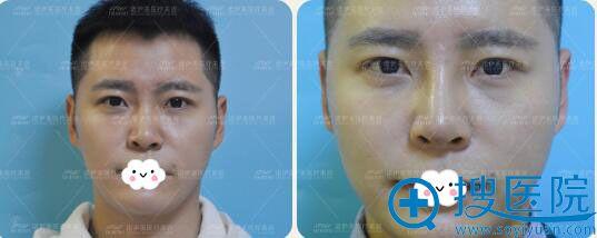 呼市诺伊美医疗美容医院鼻综合隆鼻前后效果对比
