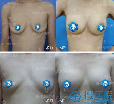 亓发芝做产后乳房萎缩下垂隆胸案例