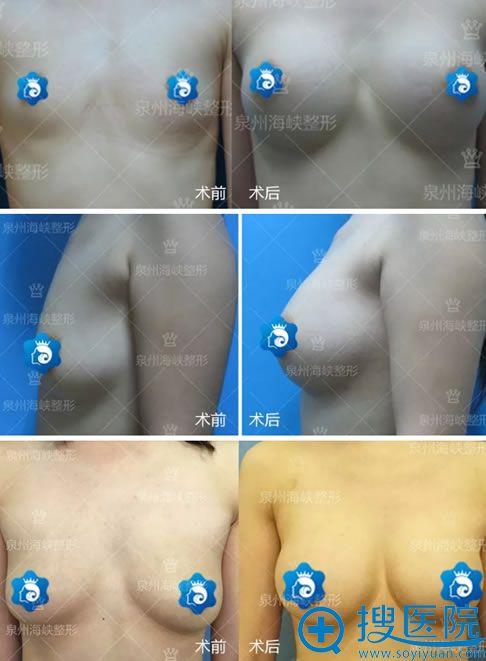 泉州海峡黄惠铭假体隆胸案例