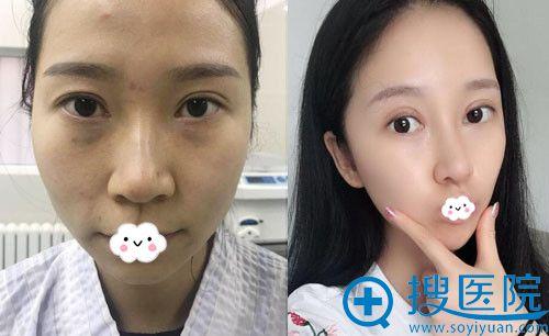 大连董萍医疗美容整形医院割双眼皮真人案例