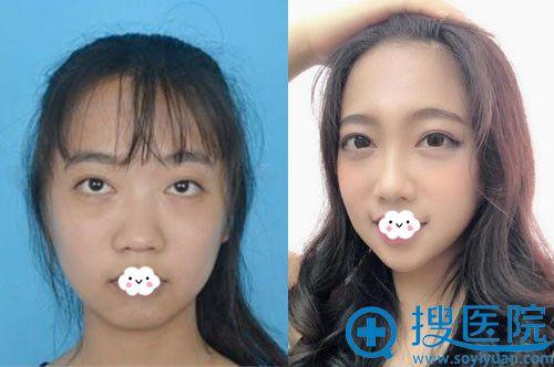 大连董萍医疗美容整形医院鼻综合隆鼻案例效果