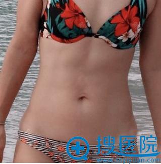 去上海天大做隆胸手术前