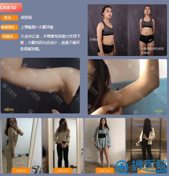 上海华美何斌做的全身吸脂案例图