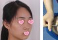 无锡渼璟整形医院马世鹏医生怎么样?他的鼻综合隆鼻案例来一个