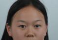 去昆山时光整形医院找吴培海做完双眼皮拿到一份2018整形价格表