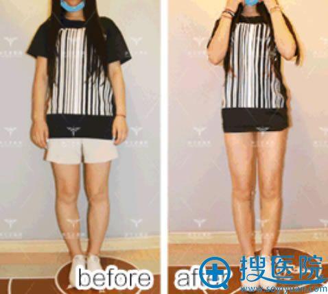 北京玉之光O型腿矫正案例效果对比图