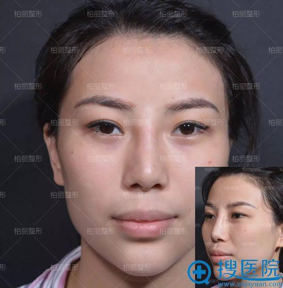 做骨粉隆鼻后导致鼻畸形照片