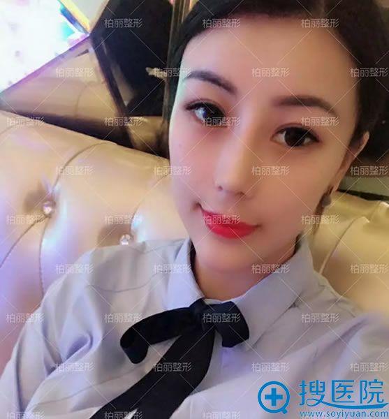 北京柏丽骨粉取出鼻修复案例