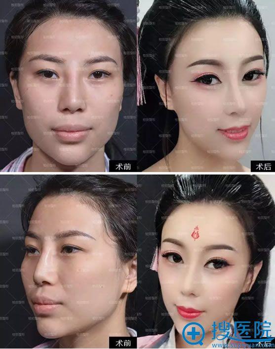 北京柏丽李劲良骨粉鼻修复案例对比图