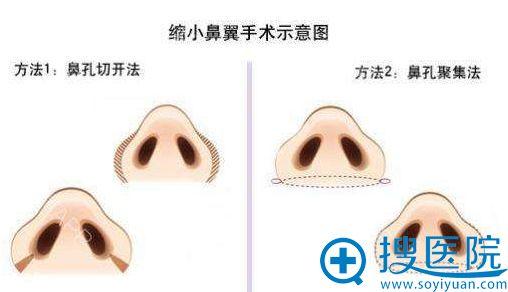 缩小鼻头鼻翼手术方法示意图