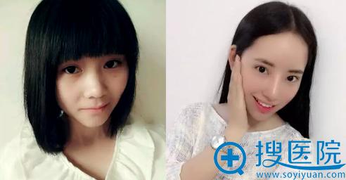 上海华美李庭勋做鼻头鼻翼缩小手术案例对比图