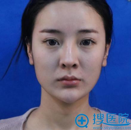在上海华美整形医院做隆鼻修复手术前