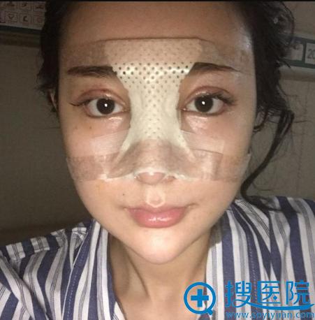 上海华美李庭勋做的隆鼻修复案例术后5天