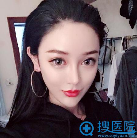 上海华美韩国李庭勋院长做的隆鼻子修复案例