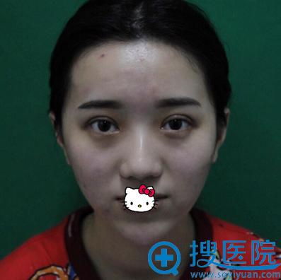 南宁韩成双眼皮术后效果