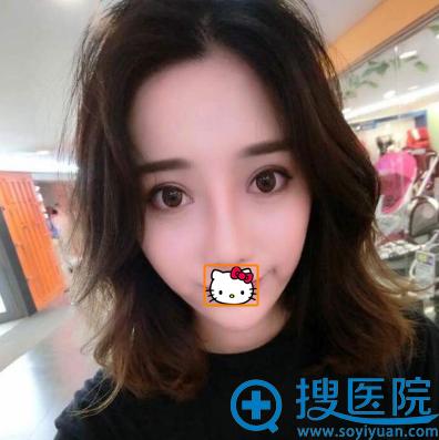 刘泳铖鼻综合术后3个月恢复照片