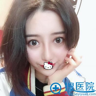 南宁韩成双眼皮+鼻综合手术效果展示