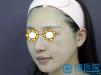 深圳香蜜丽格黎京雄3次大Q激光祛除褐青色痣还原无暇肌肤