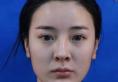 看了上海华美谢卫国的隆鼻案例后花5万元找李庭勋做了隆鼻修复