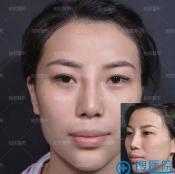 骨粉隆鼻能取出来吗?分享我这次在北京柏丽取出鼻子骨粉的经历