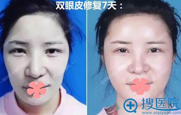 双眼皮二次修复案例图及7天后前后对比效果