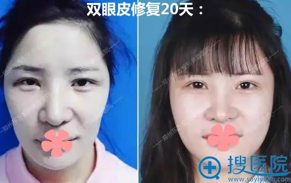 让郑州东方的朴大焕做完双眼皮修复术后20天对比照