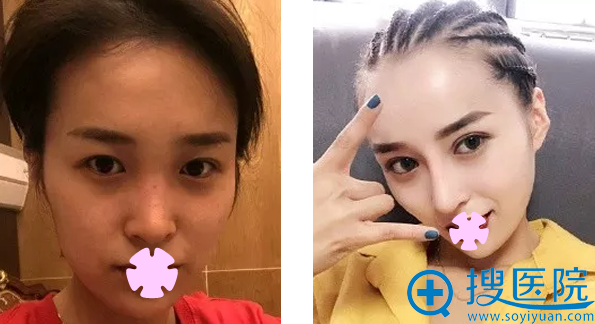 亚美全切双眼皮+鼻综合隆鼻效果案例