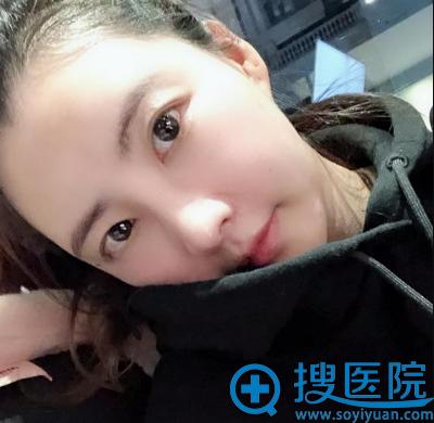 上海华美李健做的膨体加肋软骨隆鼻案例照片