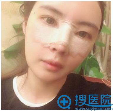 上海华美李健做隆鼻怎么样