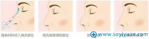 玻尿酸隆鼻手术示意图