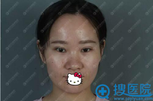 东莞美立方假体隆鼻术前照片