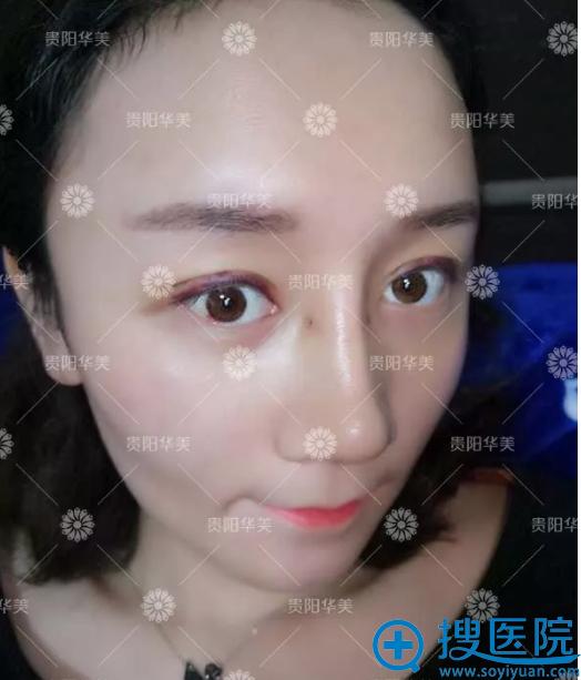 贵阳华美黄在弘院长做的双眼皮隆鼻案例图