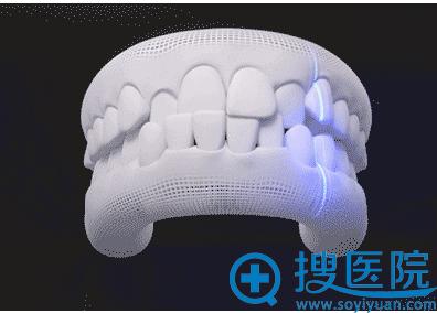 隐形牙齿矫前的微笑扫描