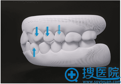 隐形牙齿矫提前绘制移位