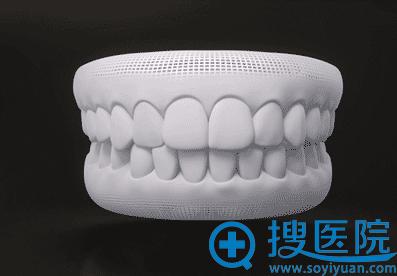 隐形牙齿矫前的效果预览